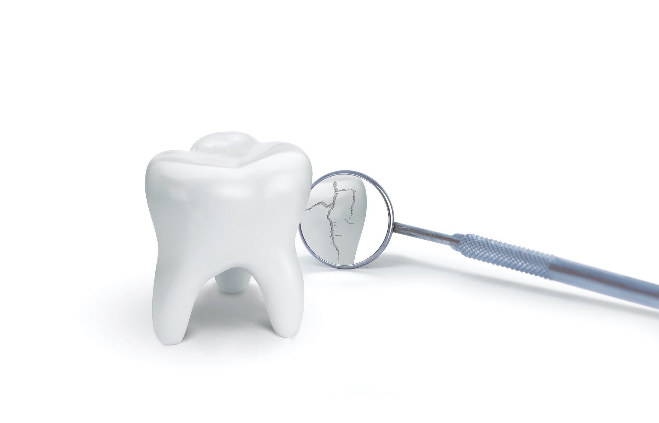 Agrietar los dientes