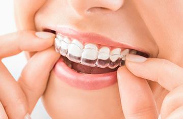 Tratamientos Dentales Y Odontologicos Vitaldent